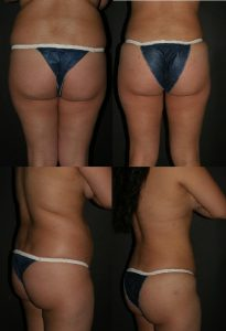 buttock augmentation before after pics