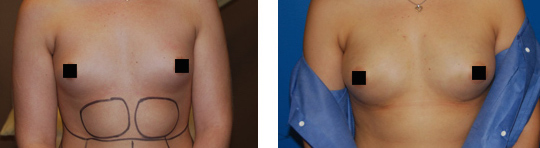 Fat Transfer Breast Augmentation Before & After Pictures