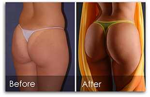 Buttocks Enhancement Cream Before & After Results