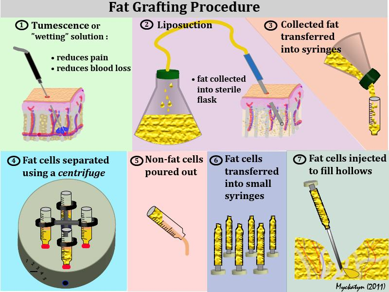 How Fat Grafting is Performed?