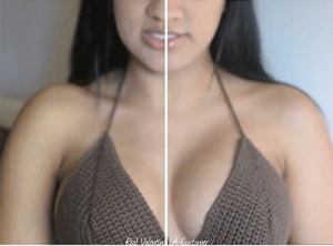 Silicone Breast Lifting Bras