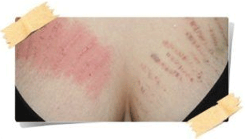 Remove Stretch Marks on Breasts after Pregnancy at Home